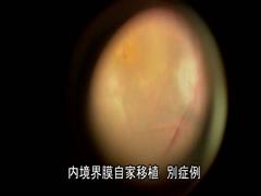 内境界膜自家移植別症例